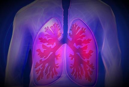 COPD - Botica di Servicio Aruba